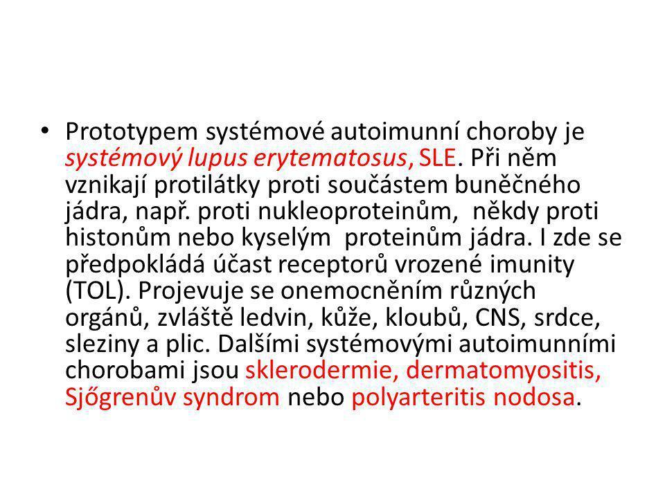 Prototypem systémové autoimunní choroby je systémový lupus erytematosus, SLE.