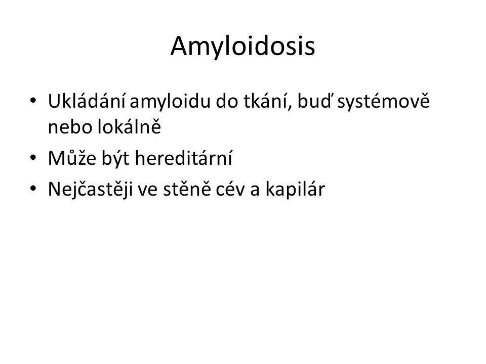 Amyloidosis Ukládání amyloidu do tkání, buď systémově nebo lokálně