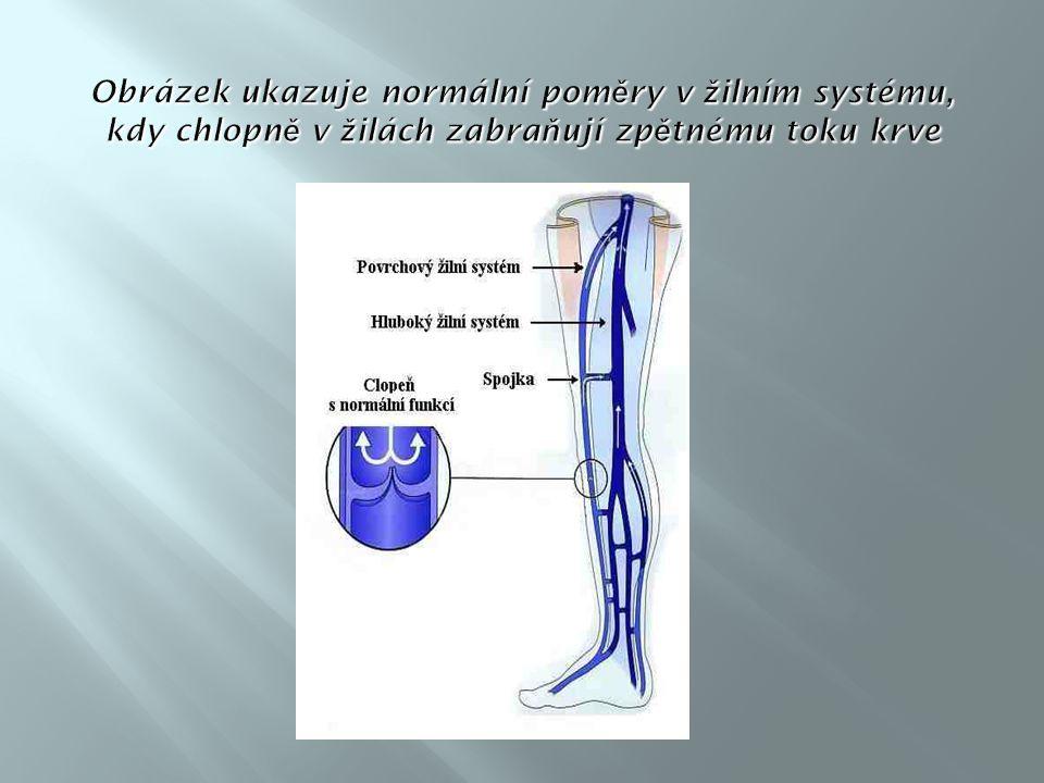 Obrázek ukazuje normální poměry v žilním systému, kdy chlopně v žilách zabraňují zpětnému toku krve