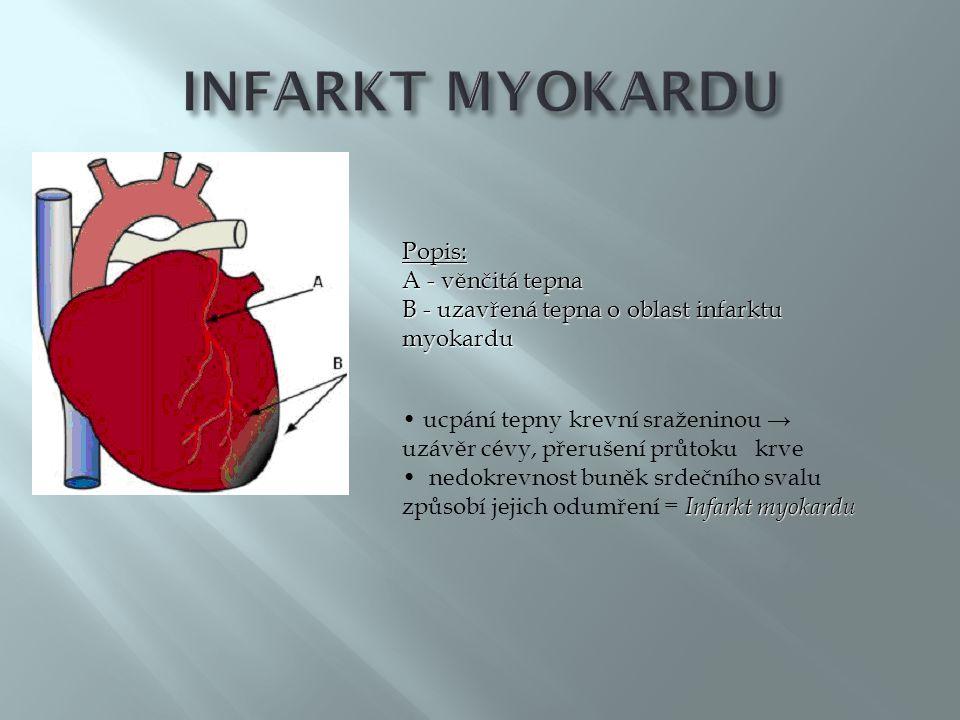 INFARKT MYOKARDU Popis: A - věnčitá tepna