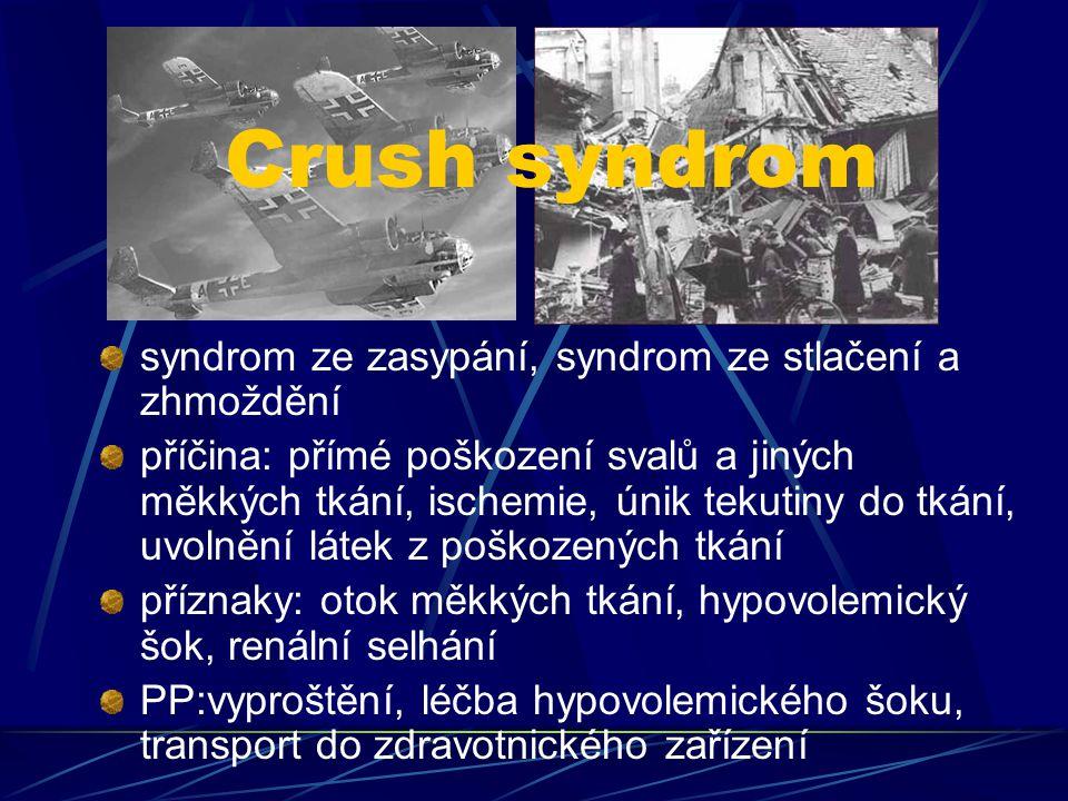 Crush syndrom syndrom ze zasypání, syndrom ze stlačení a zhmoždění