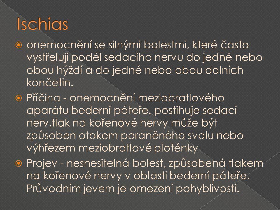 Ischias onemocnění se silnými bolestmi, které často vystřelují podél sedacího nervu do jedné nebo obou hýždí a do jedné nebo obou dolních končetin.