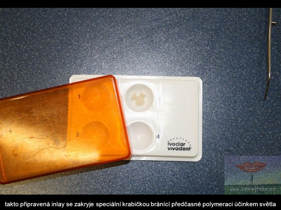 takto připravená inlay se zakryje speciální krabičkou bránící předčasné polymeraci účinkem světla