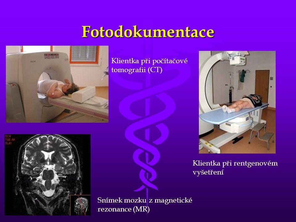 Fotodokumentace Klientka při počítačové tomografii (CT)
