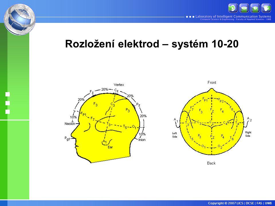 Rozložení elektrod – systém 10-20