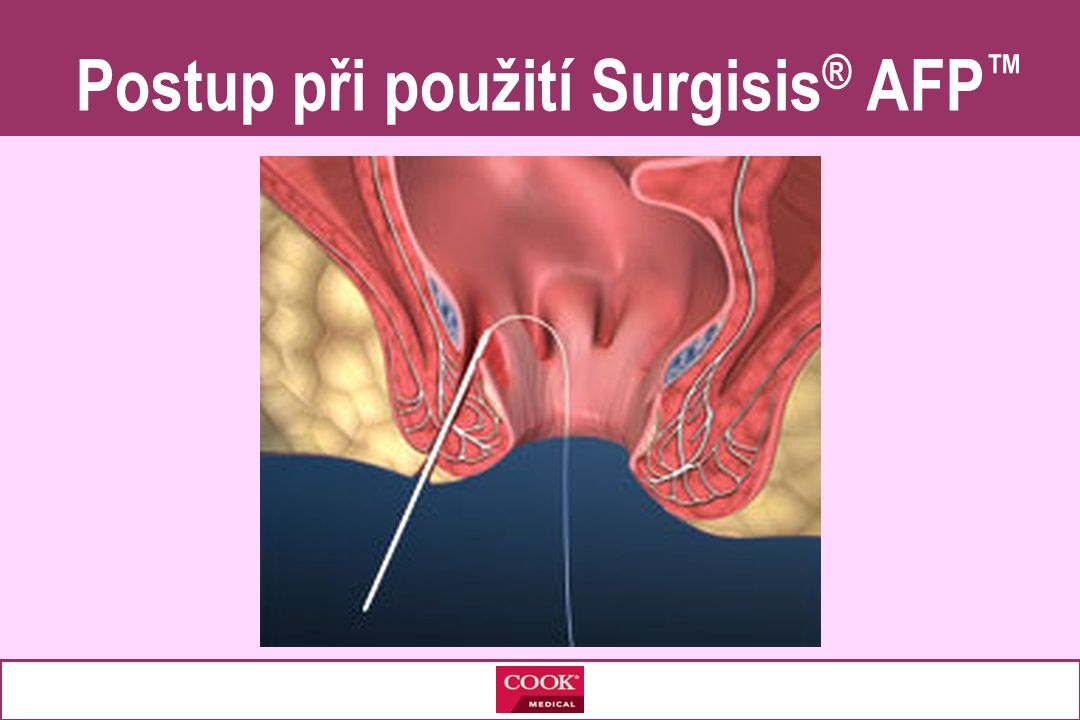 Postup při použití Surgisis® AFP™