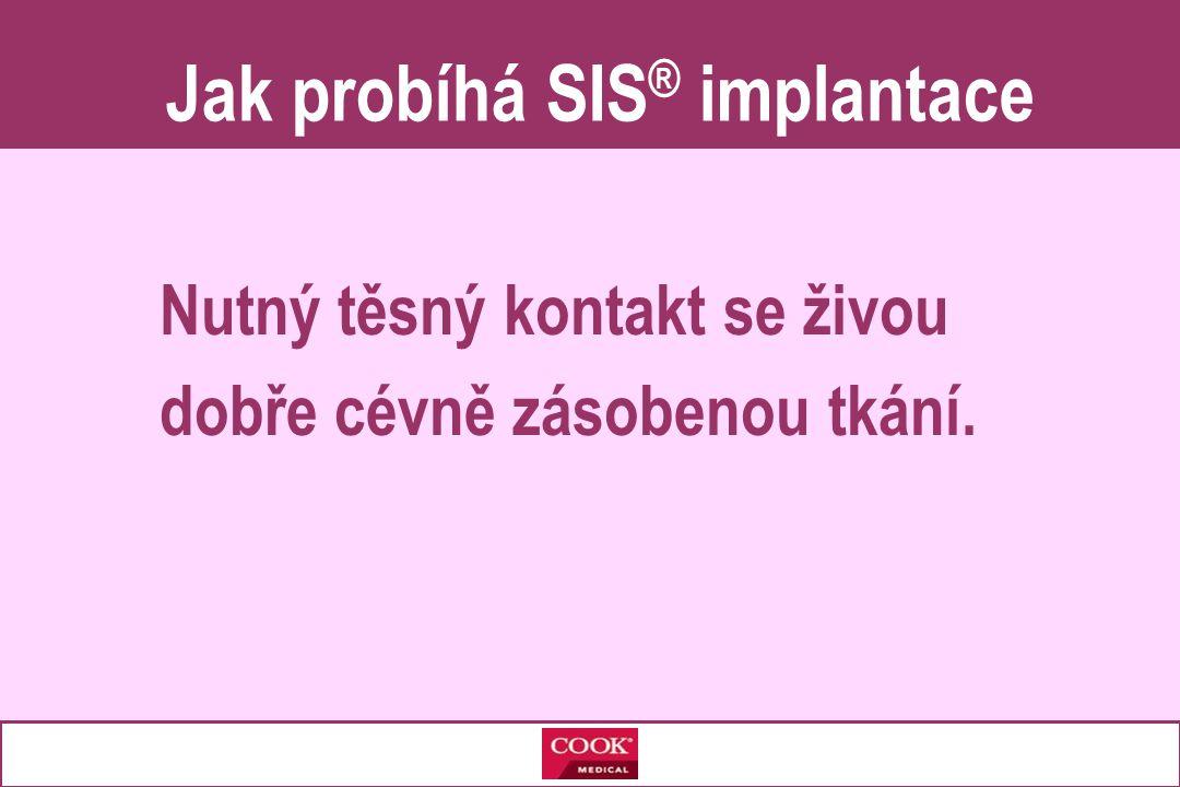 Jak probíhá SIS® implantace