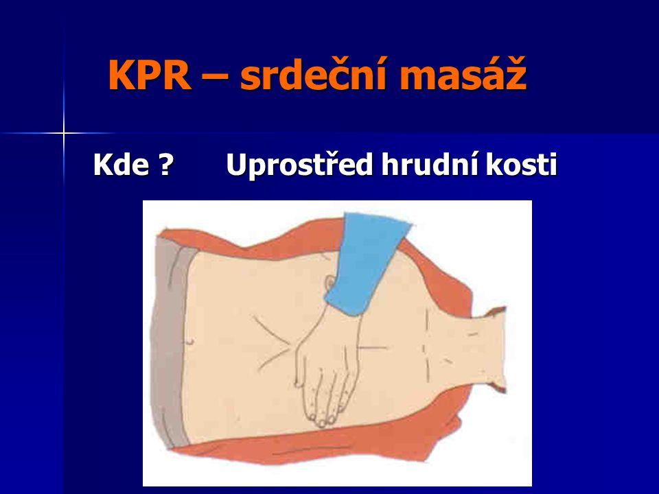 KPR – srdeční masáž Kde Uprostřed hrudní kosti