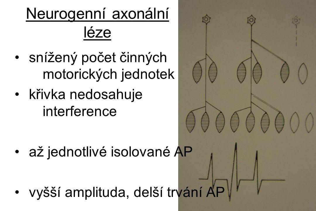Neurogenní axonální léze