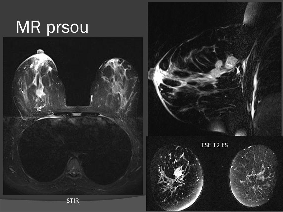 MR prsou TSE T2 FS STIR