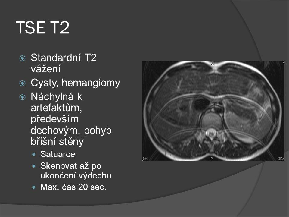 TSE T2 Standardní T2 vážení Cysty, hemangiomy