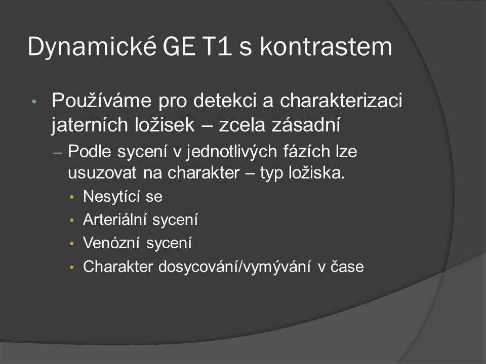 Dynamické GE T1 s kontrastem
