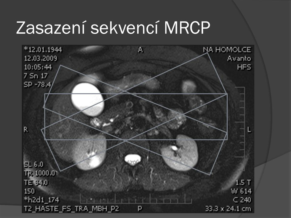 Zasazení sekvencí MRCP