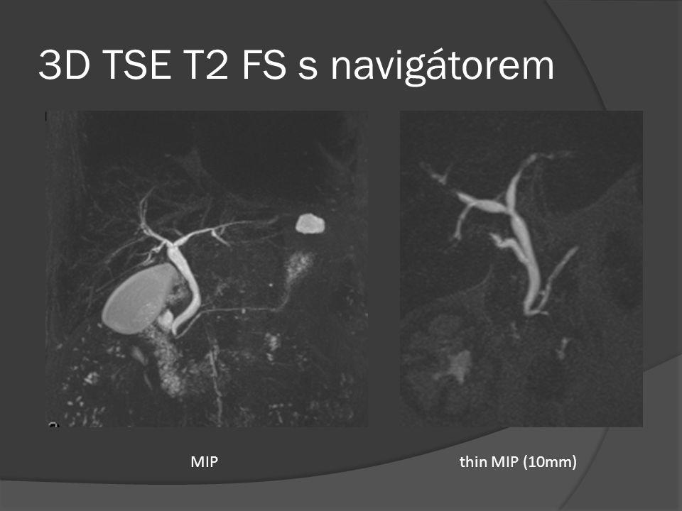 3D TSE T2 FS s navigátorem MIP thin MIP (10mm)