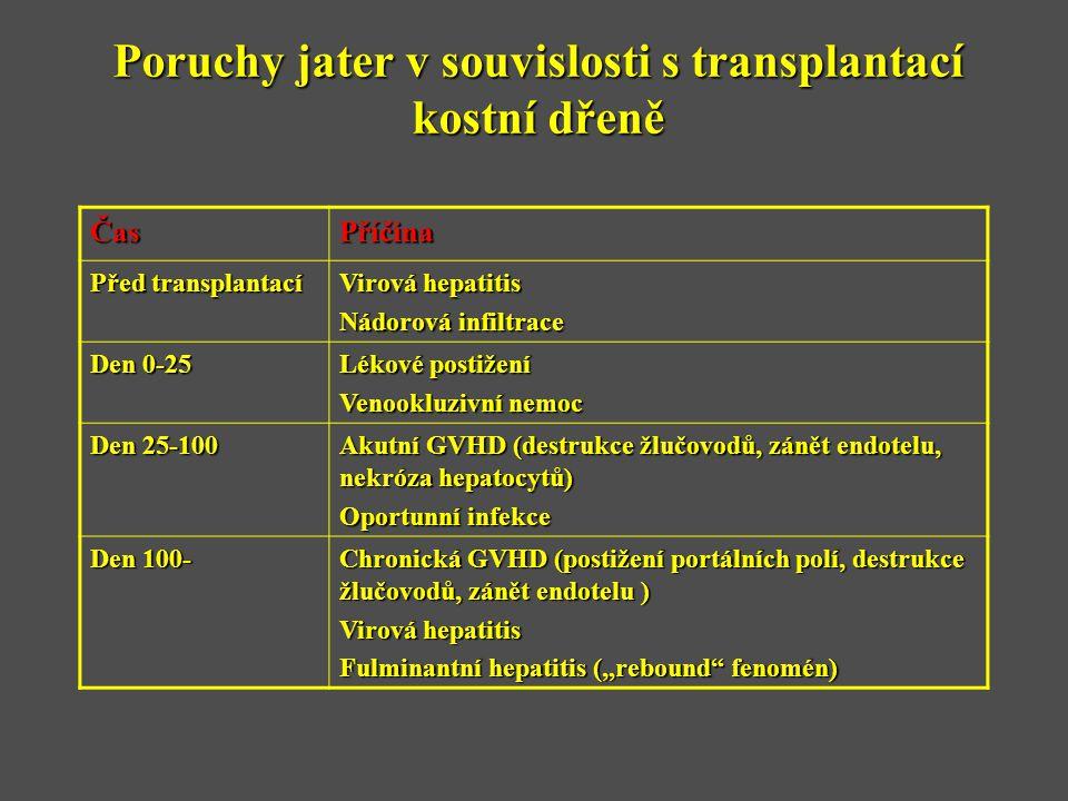 Poruchy jater v souvislosti s transplantací kostní dřeně