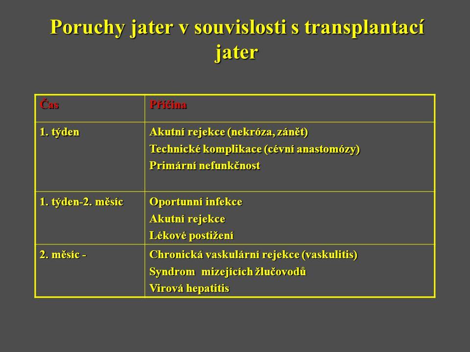 Poruchy jater v souvislosti s transplantací jater