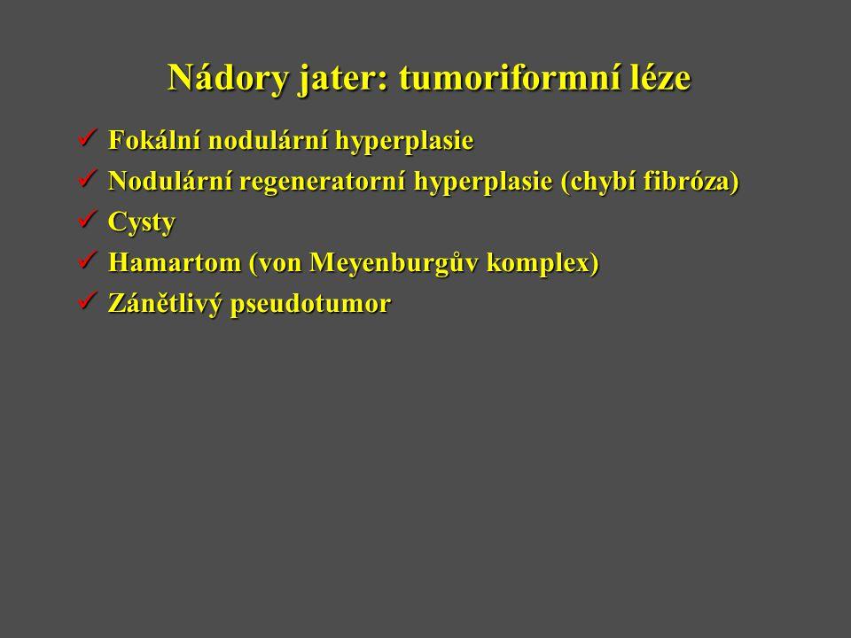 Nádory jater: tumoriformní léze