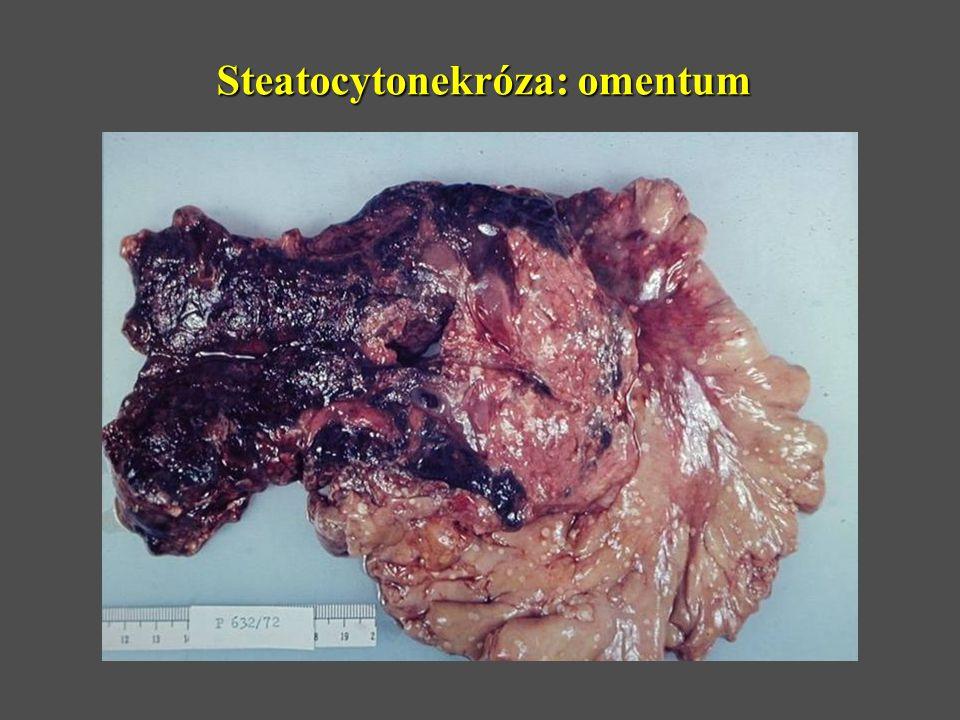 Steatocytonekróza: omentum