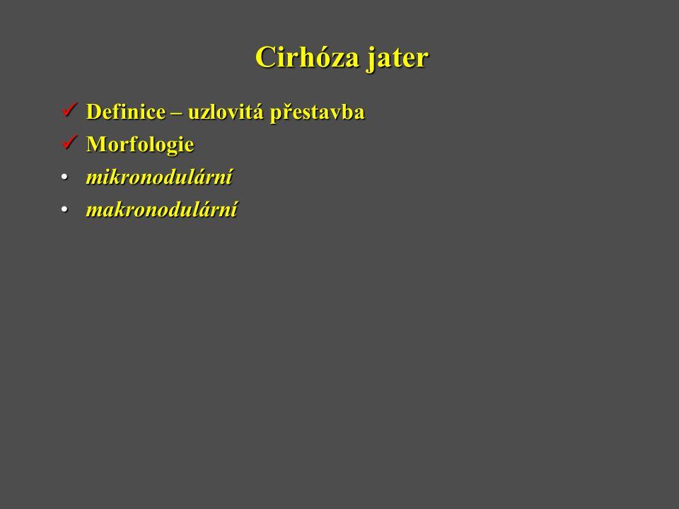 Cirhóza jater Definice – uzlovitá přestavba Morfologie mikronodulární