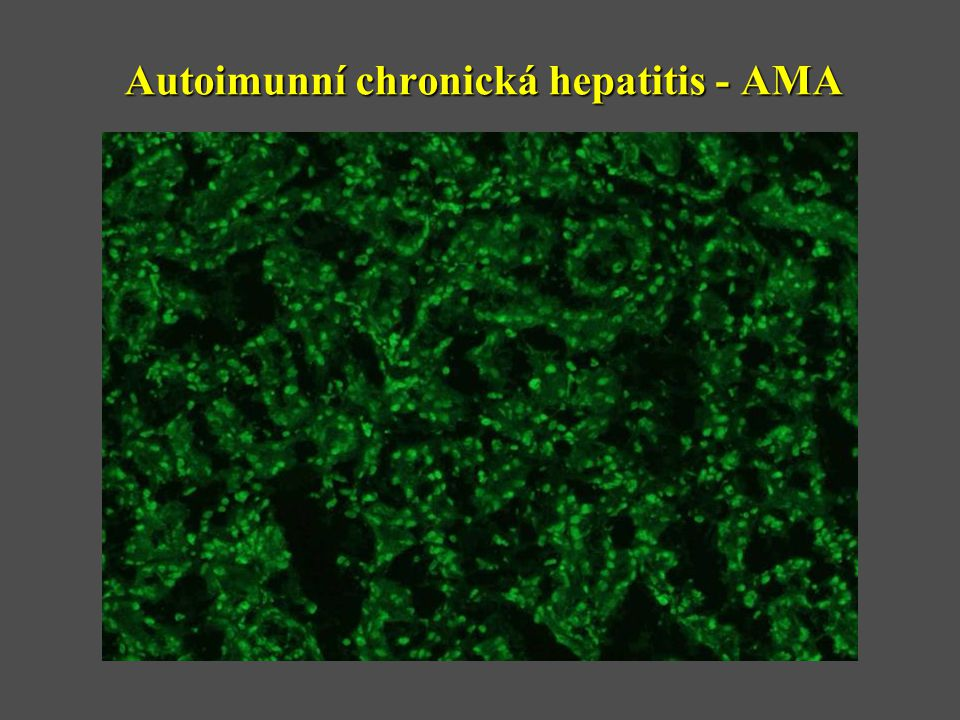 Autoimunní chronická hepatitis - AMA