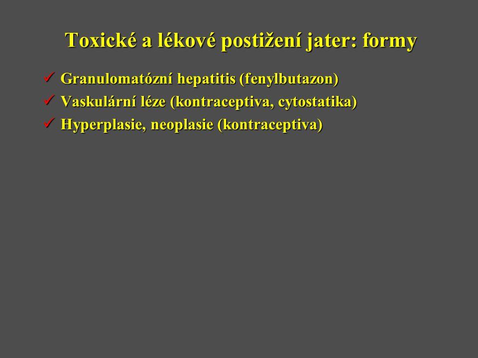 Toxické a lékové postižení jater: formy