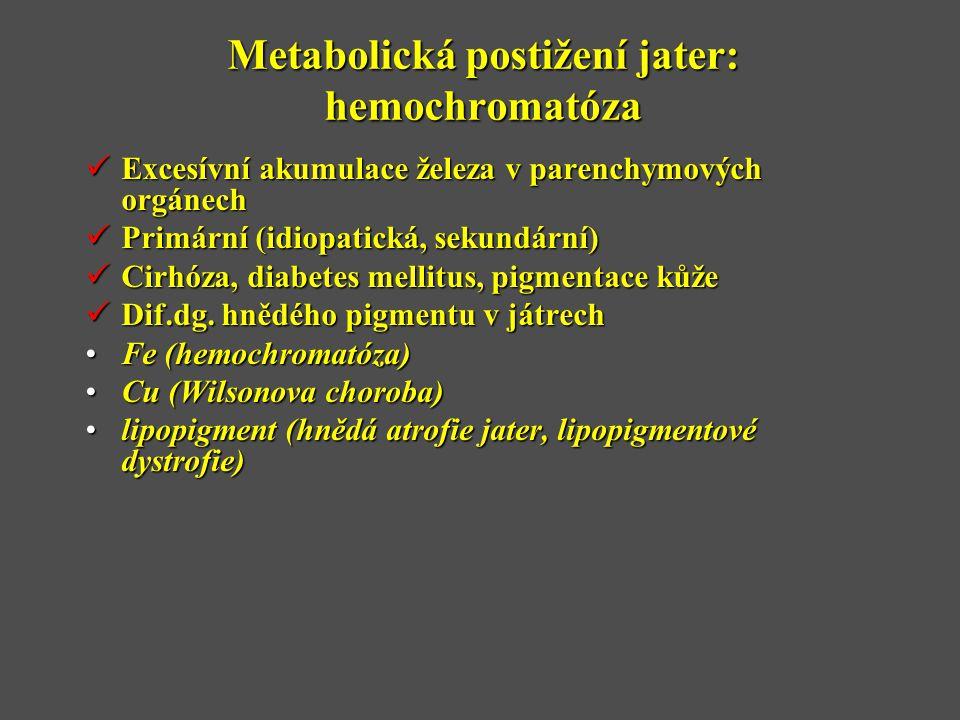 Metabolická postižení jater: hemochromatóza