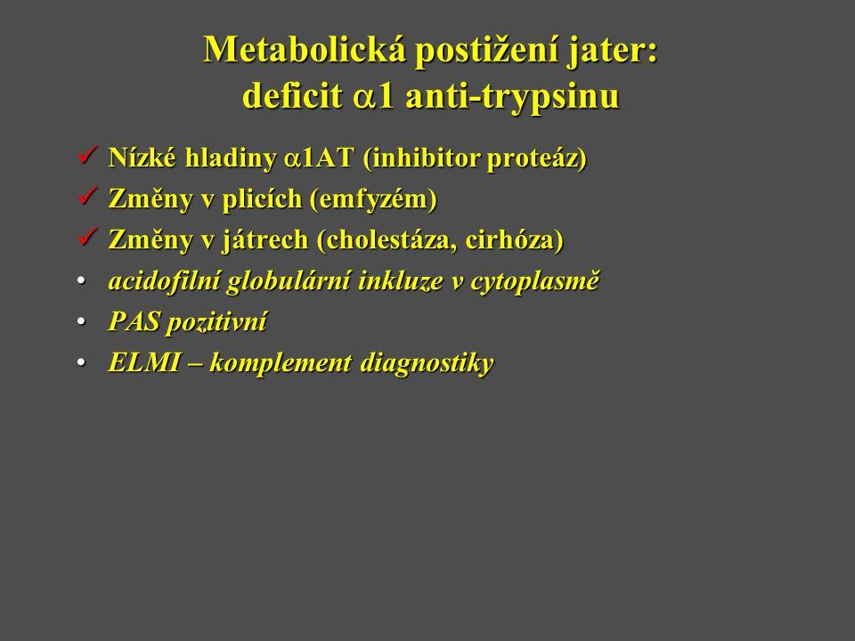 Metabolická postižení jater: deficit a1 anti-trypsinu