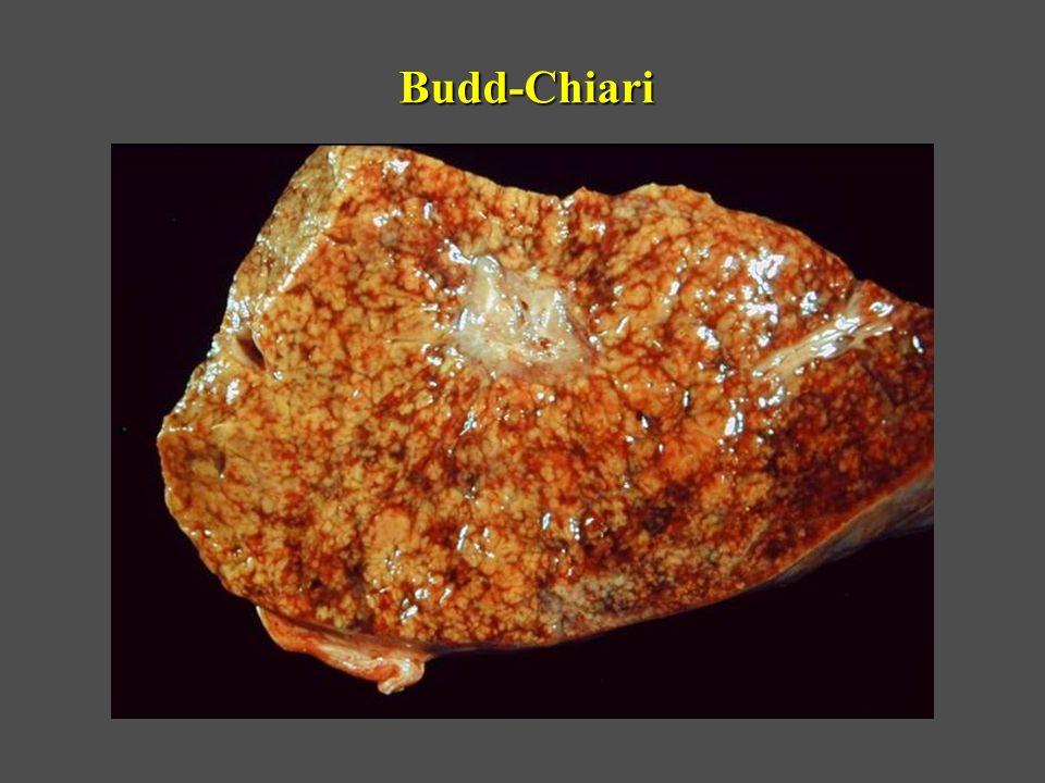 Budd-Chiari