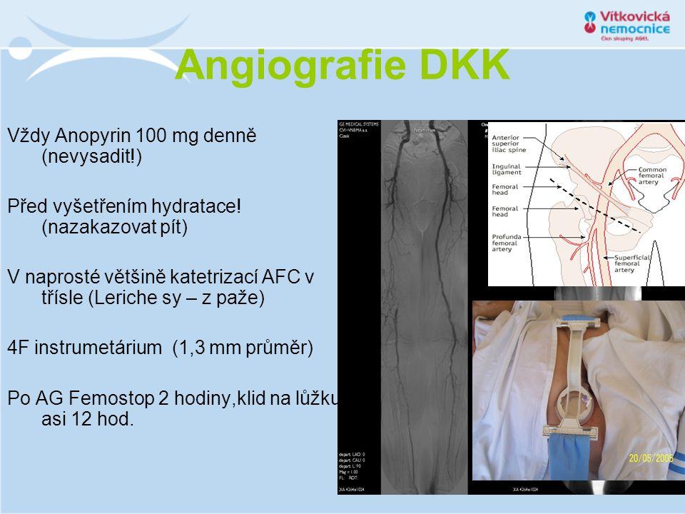 Angiografie DKK Vždy Anopyrin 100 mg denně (nevysadit!)