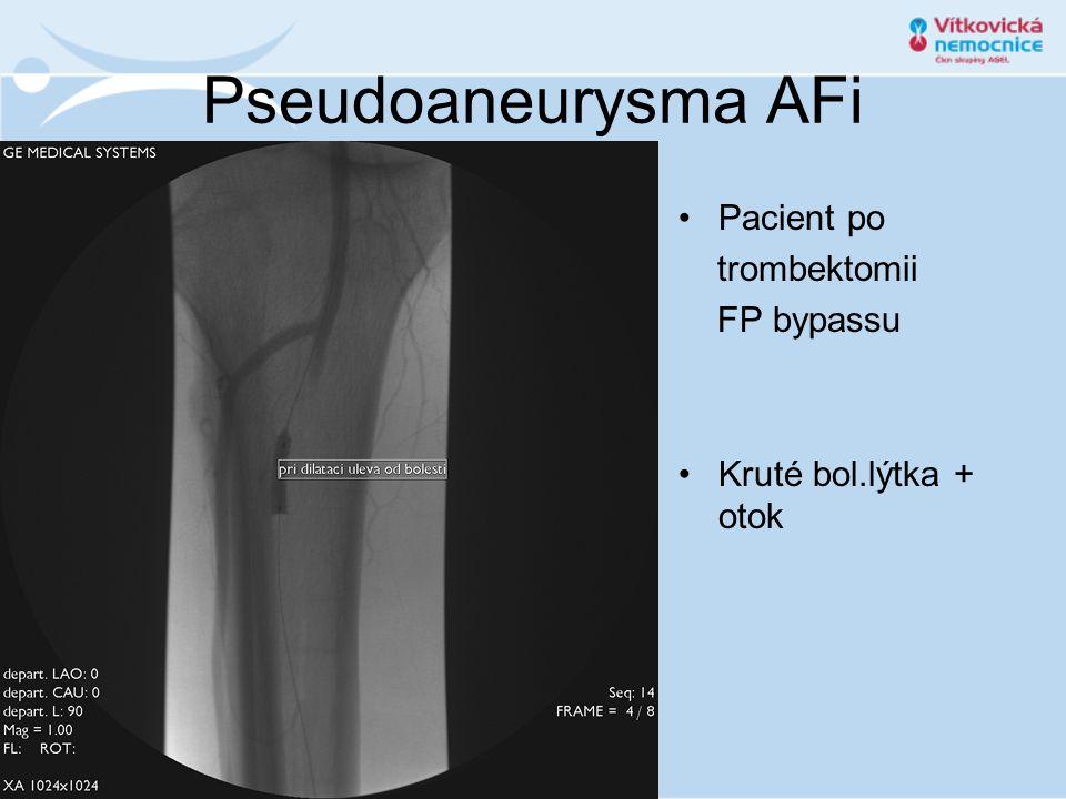 Pseudoaneurysma AFi Pacient po trombektomii FP bypassu