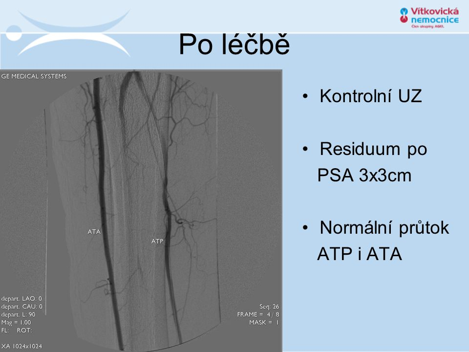 Po léčbě Kontrolní UZ Residuum po PSA 3x3cm Normální průtok ATP i ATA