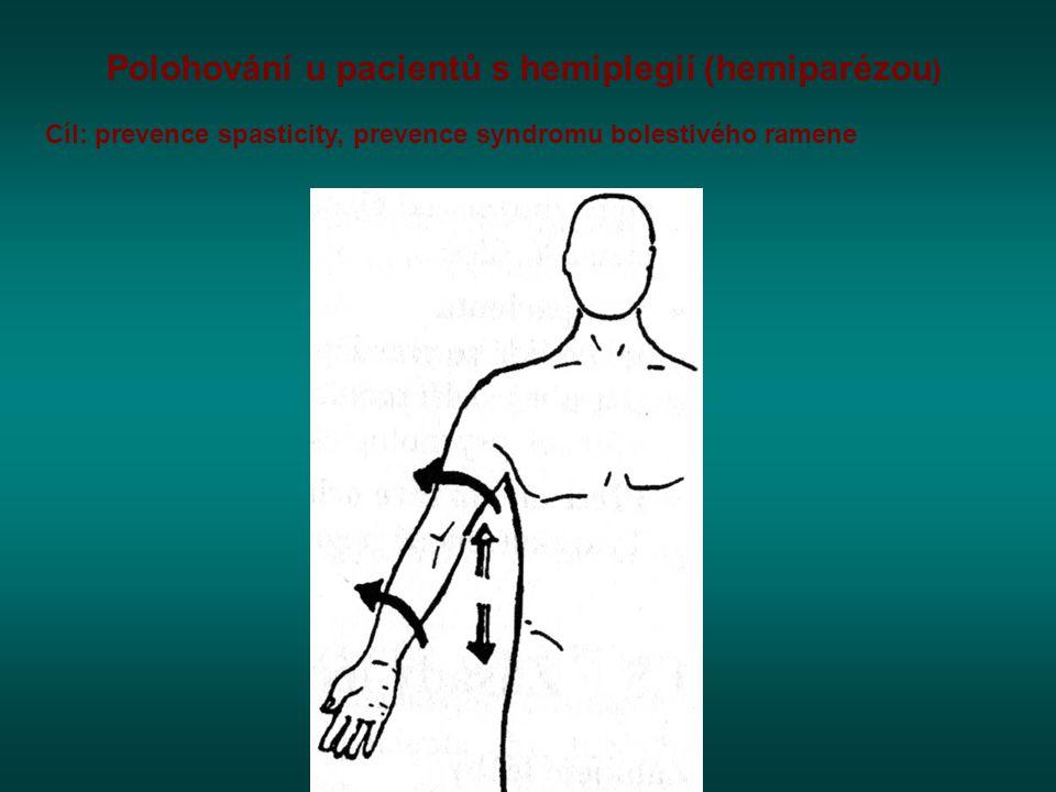 Polohování u pacientů s hemiplegií (hemiparézou)
