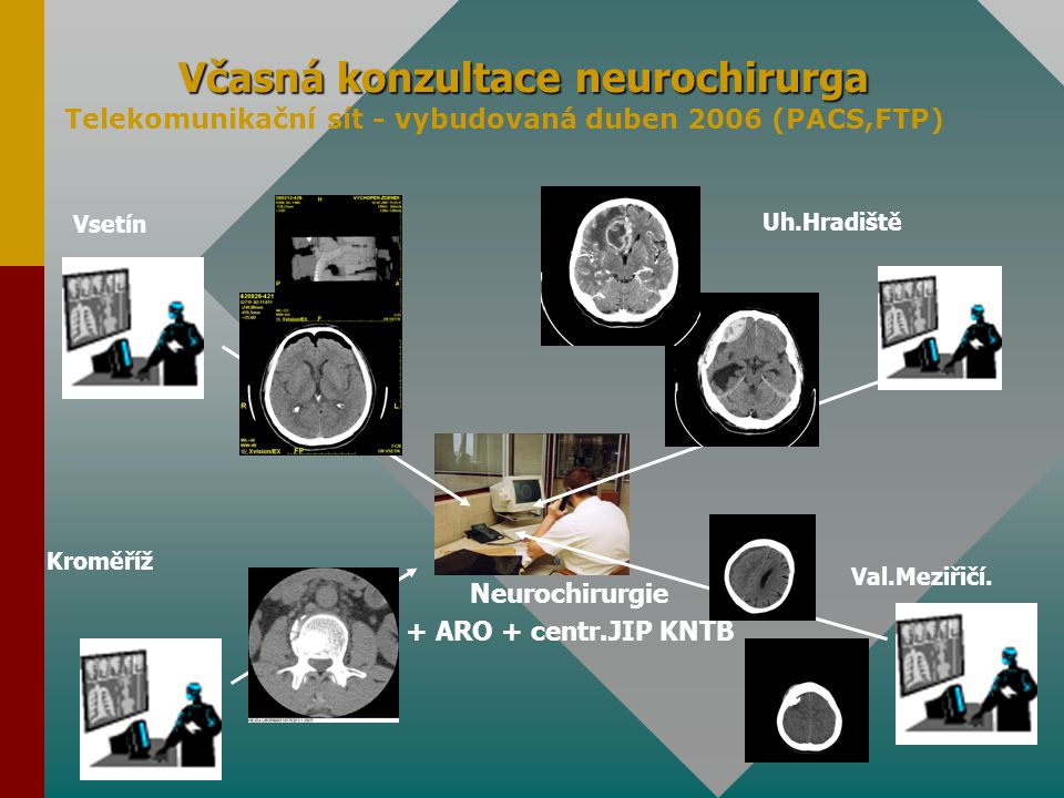 Včasná konzultace neurochirurga