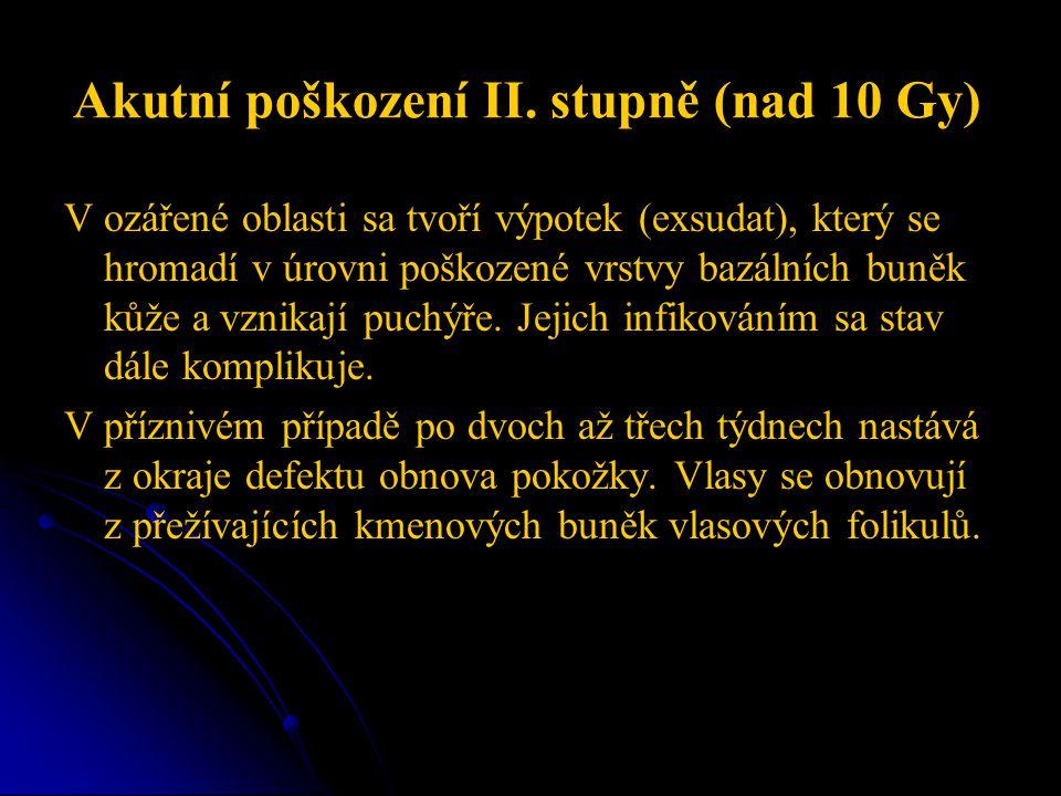 Akutní poškození II. stupně (nad 10 Gy)