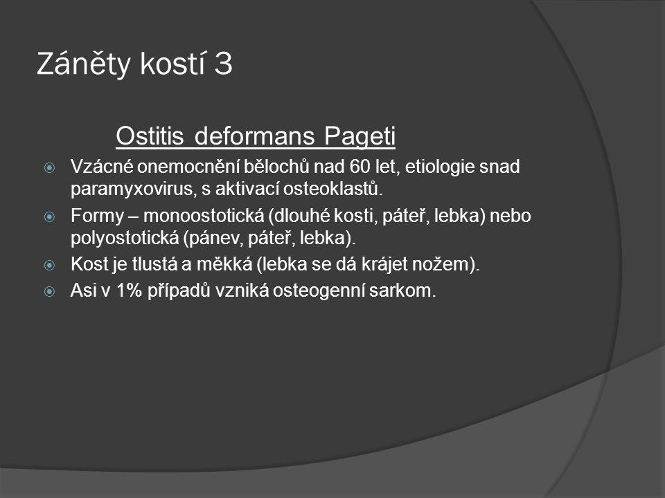 Záněty kostí 3 Ostitis deformans Pageti