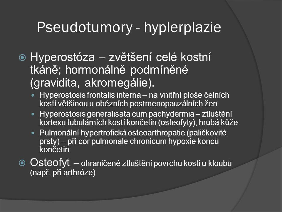 Pseudotumory - hyplerplazie