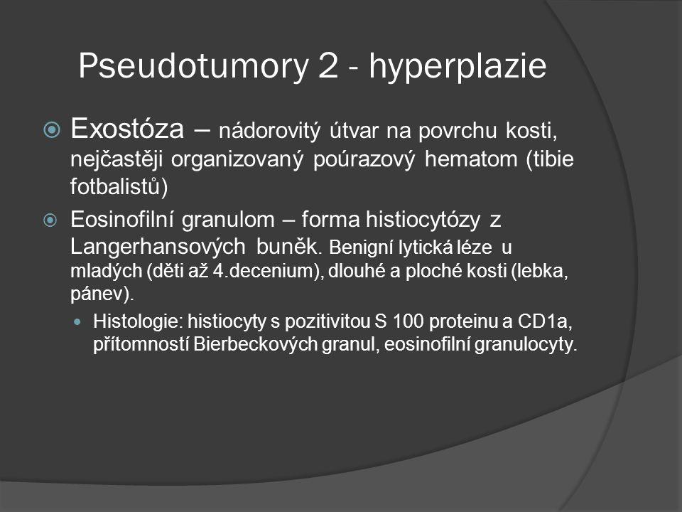 Pseudotumory 2 - hyperplazie