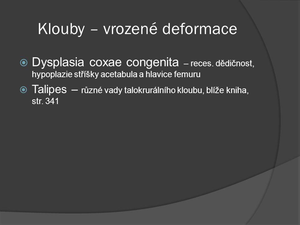 Klouby – vrozené deformace