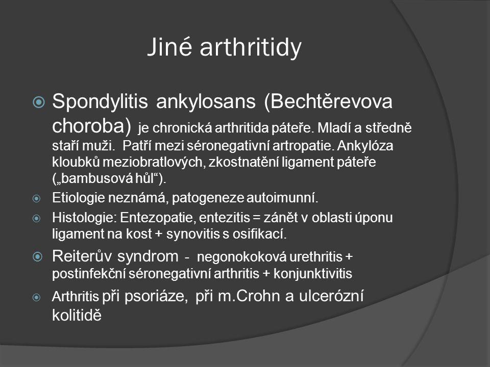 Jiné arthritidy
