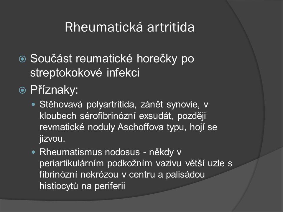 Rheumatická artritida