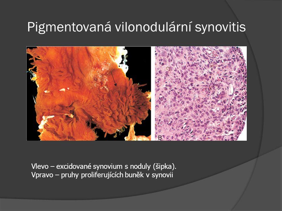 Pigmentovaná vilonodulární synovitis