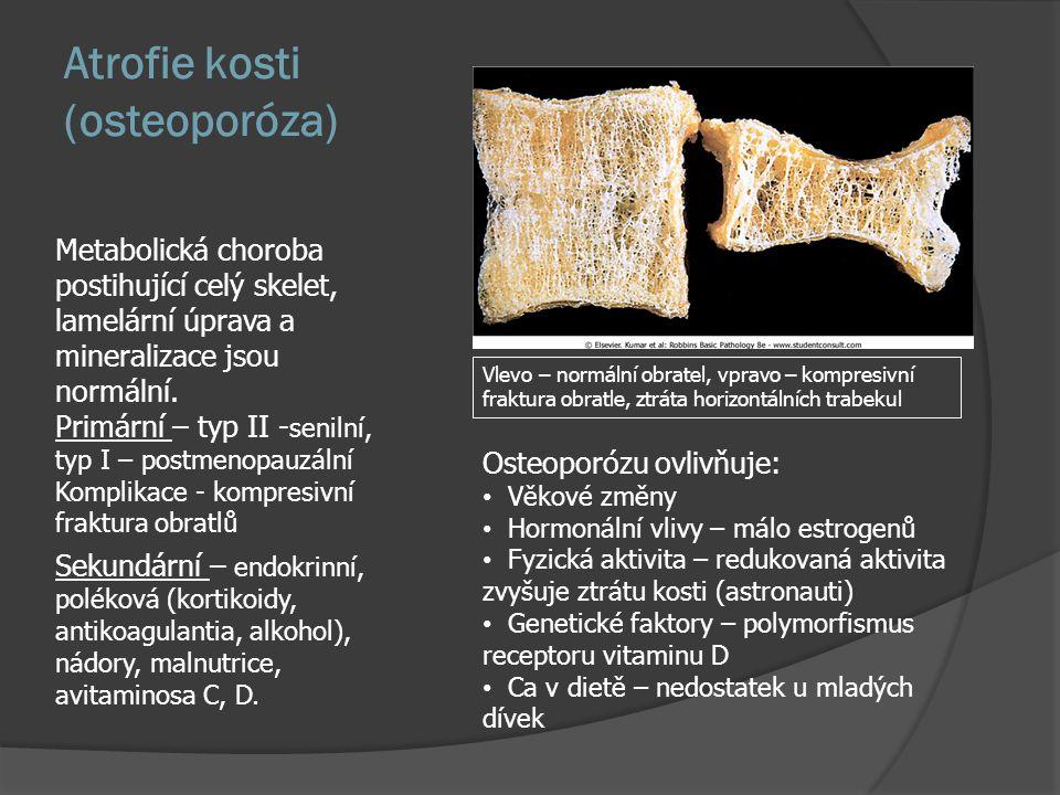 Atrofie kosti (osteoporóza)