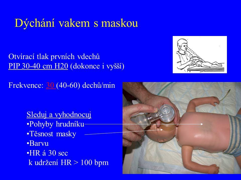 Dýchání vakem s maskou Otvírací tlak prvních vdechů