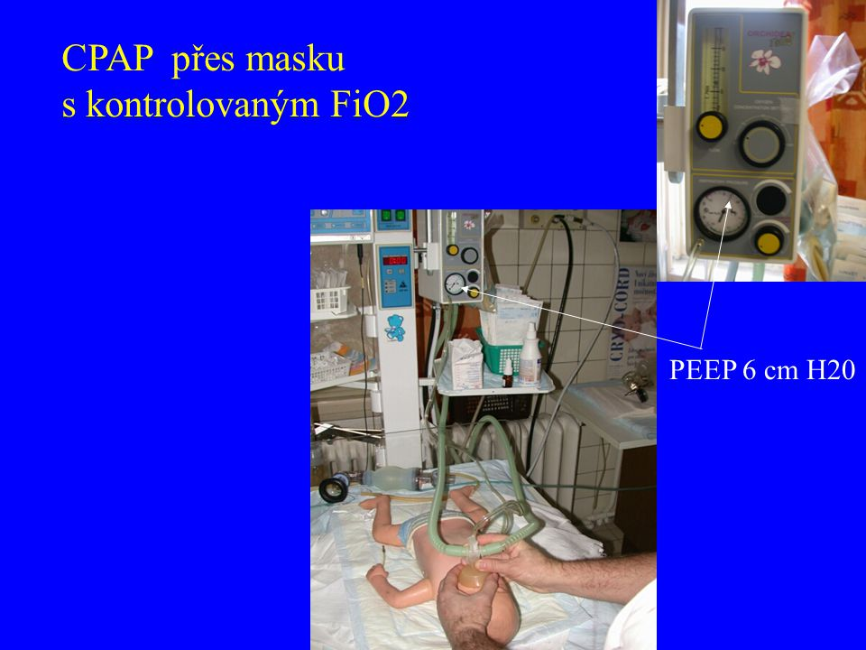 CPAP přes masku s kontrolovaným FiO2 PEEP 6 cm H20