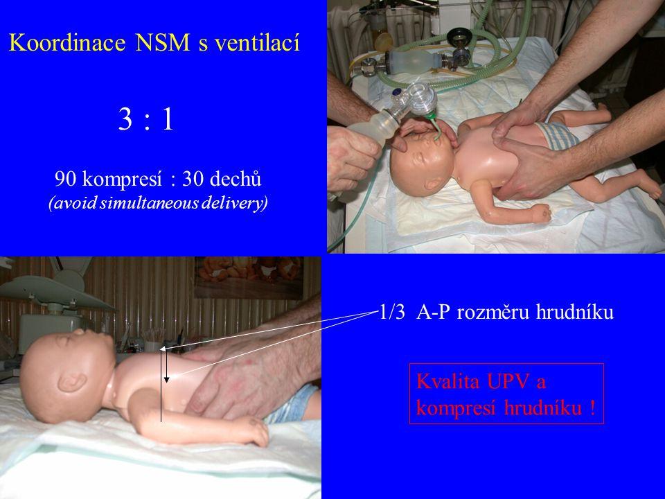 3 : 1 Koordinace NSM s ventilací 90 kompresí : 30 dechů