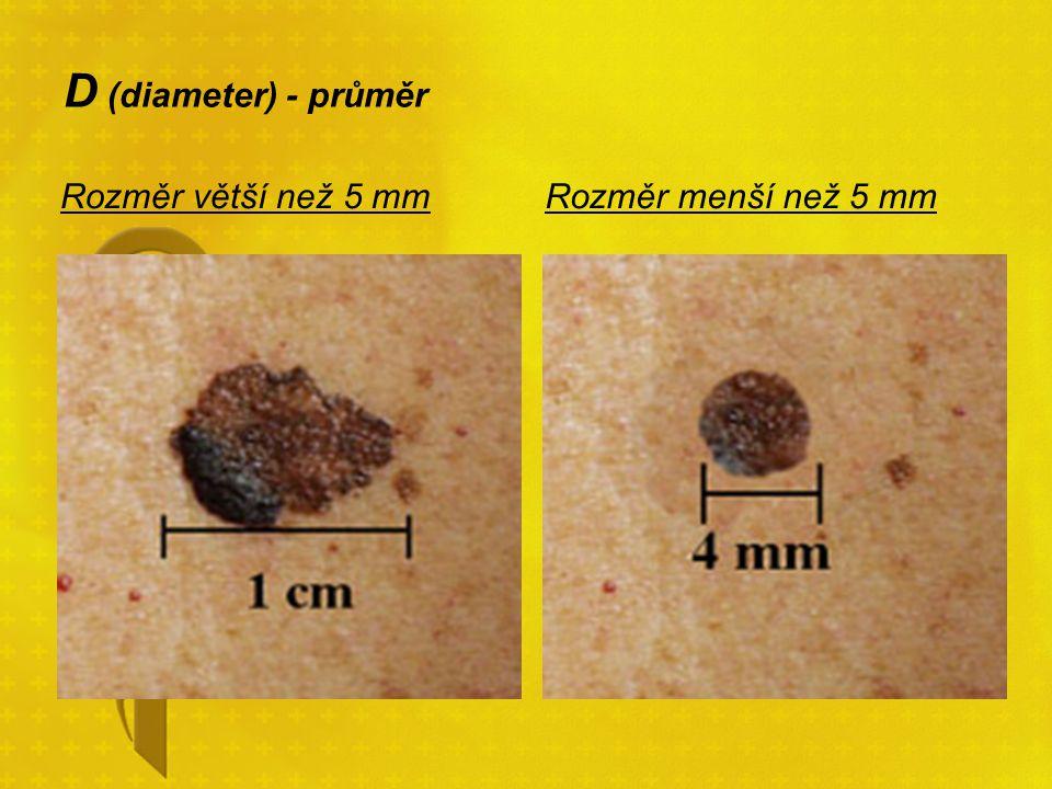 D (diameter) - průměr Rozměr větší než 5 mm Rozměr menší než 5 mm