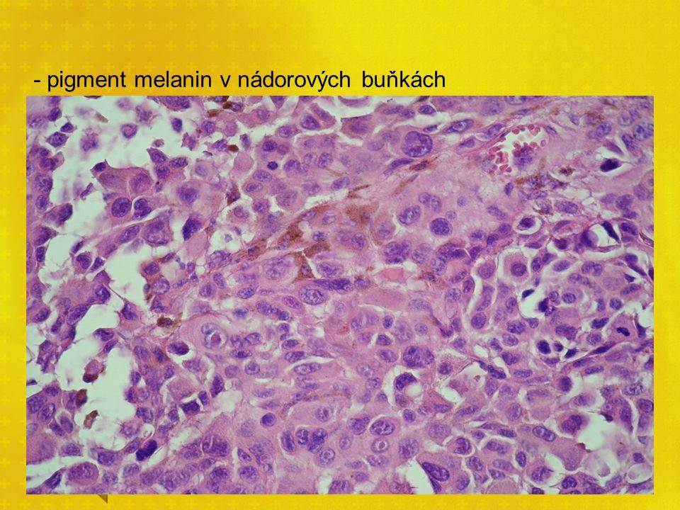 - pigment melanin v nádorových buňkách