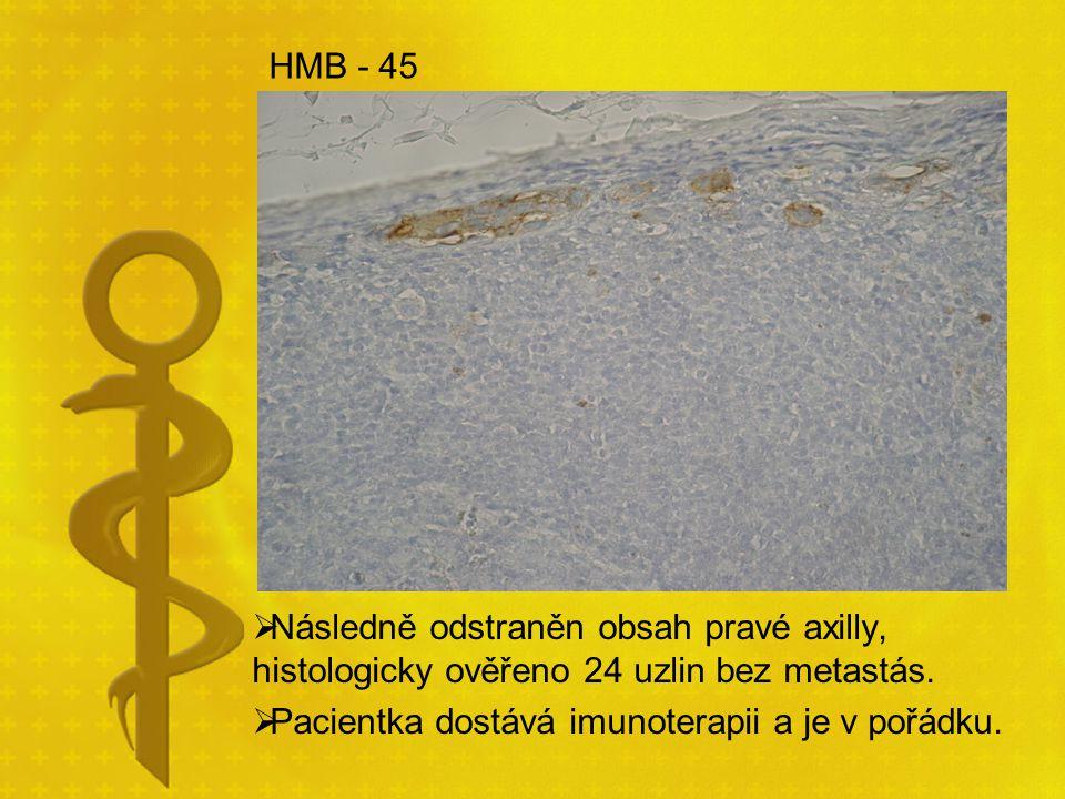 HMB - 45 Následně odstraněn obsah pravé axilly, histologicky ověřeno 24 uzlin bez metastás.