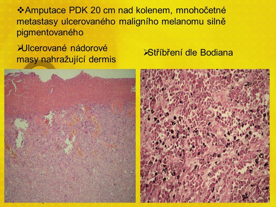 Amputace PDK 20 cm nad kolenem, mnohočetné metastasy ulcerovaného maligního melanomu silně pigmentovaného