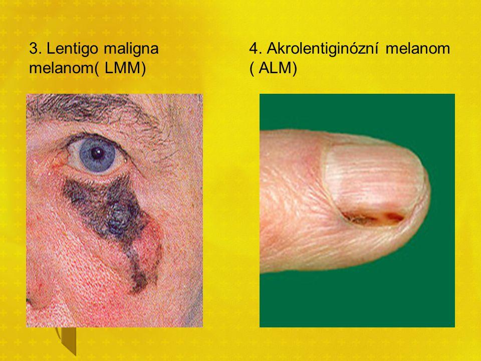 3. Lentigo maligna melanom( LMM)